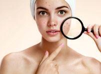 best anti acne creams wrinkle treatment