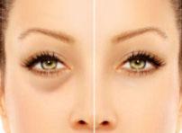 shop by concern dark circles removal creams