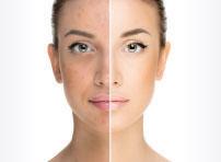 skin blemishes pigmentation removal cream